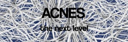 Update 07.00 uur vrijdag - ACNES, the next level.....